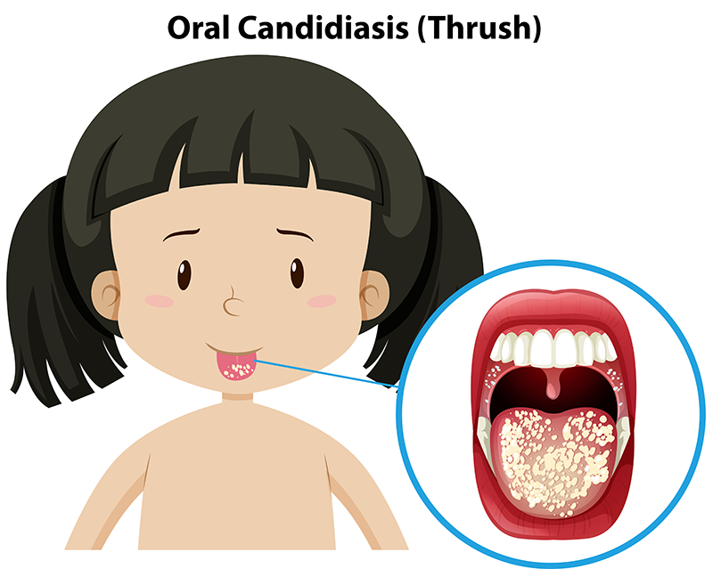 Best Homeopathic Doctor for Oral Litchen Planus in Pune