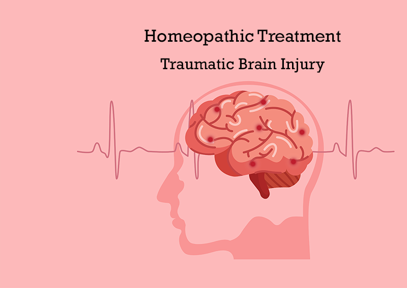 homeopathic treatment for traumatic brain injury in pune