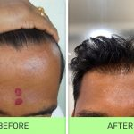 Best hair transplant treatment in pune
